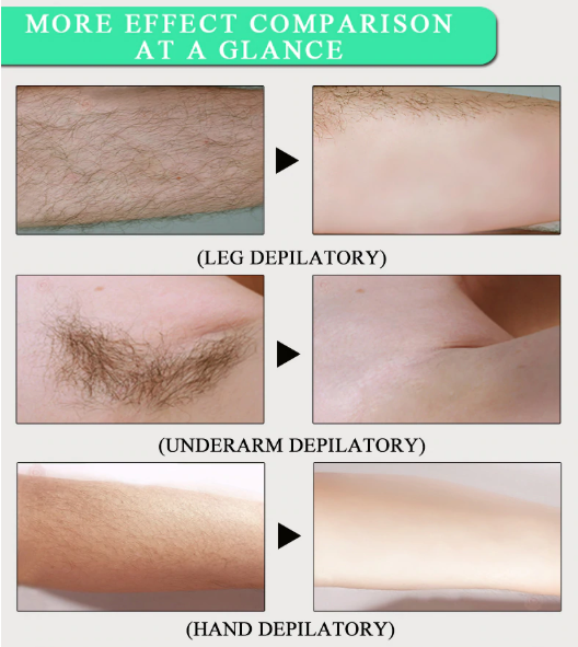Hair removal cream 4.png